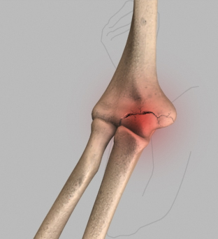 Elbow Injuries in the Throwing Athlete