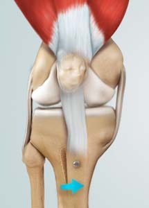 Osteotomy of the Knee