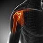 Biceps Tendon Tear at the Shoulder